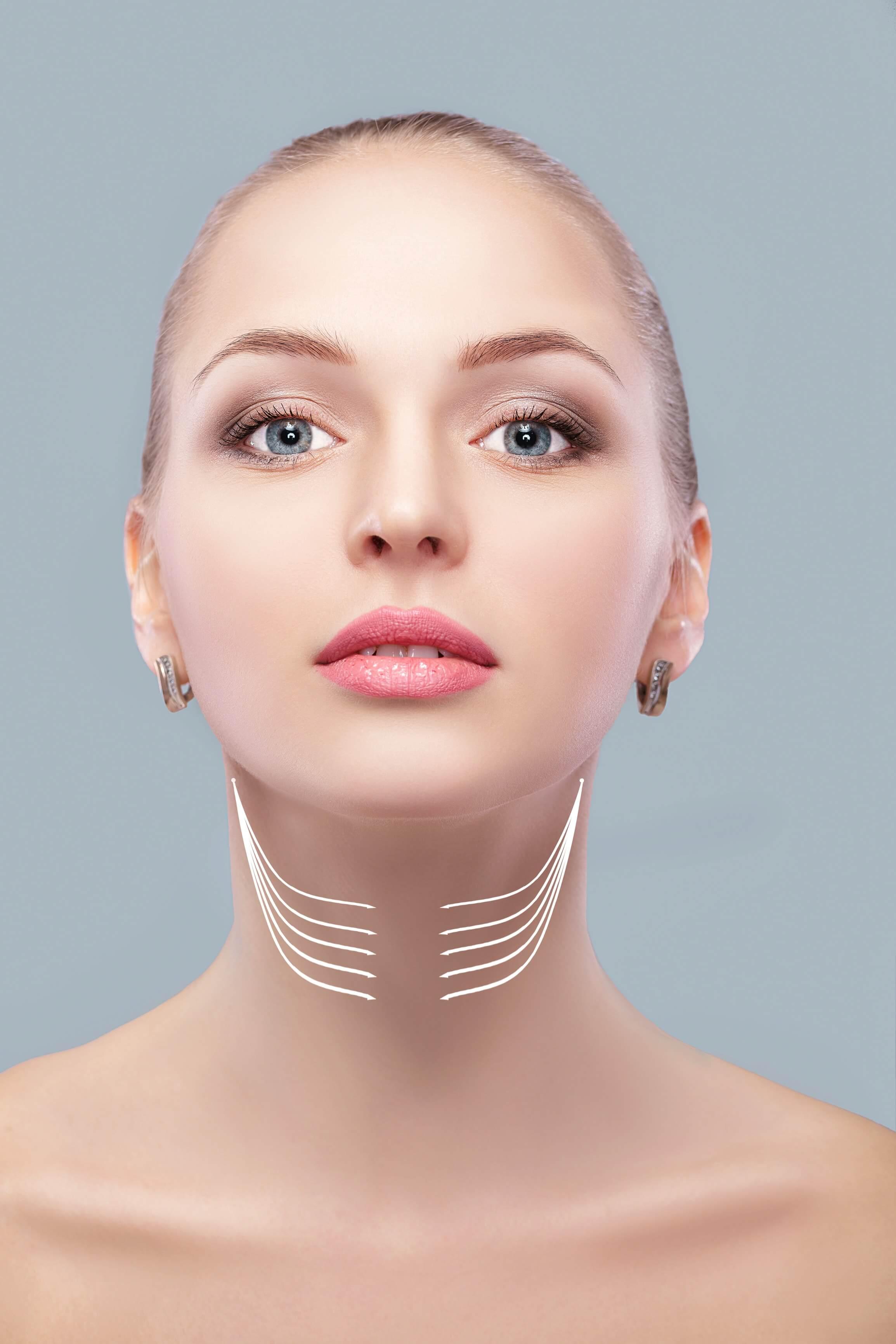 neck-lift-surgery
