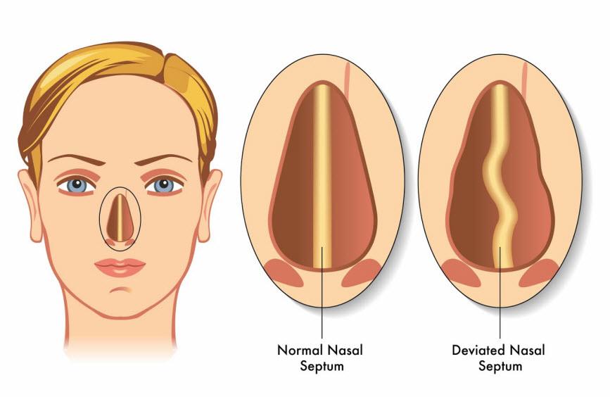 rhinoplasty-snooring